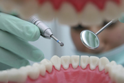 Best Treatment For Dental Implants - Call Now